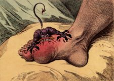 La goutte - Gravure de James Gillray